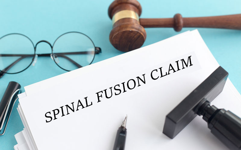 Spinal fusion claim data released