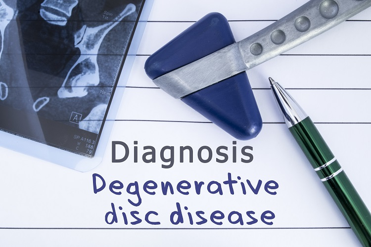 Difficulty in Proving Degenerative Disc Disease in Worker's Comp Claims